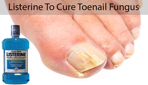 Image result for toenail fungus and listerine