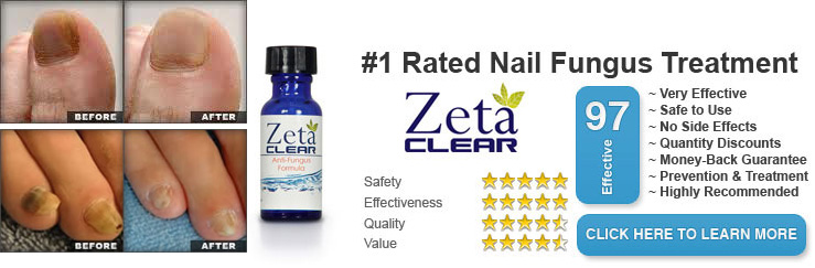 Zeta Clear Toenail Fungus Treatment Risk Free Trial 2 Free Bottles