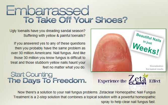 Zeta Clear Toenail Fungus Treatment: Risk Free Trial | 2 Free Bottles