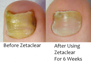Nail treatment reviews