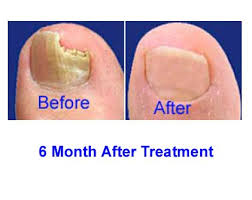 nail fungus treatment after 6 months