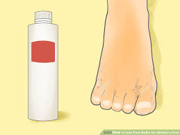 foot fungus treatments